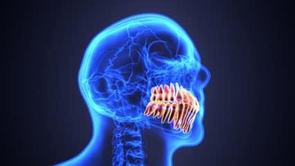 troubles dentaires 78
